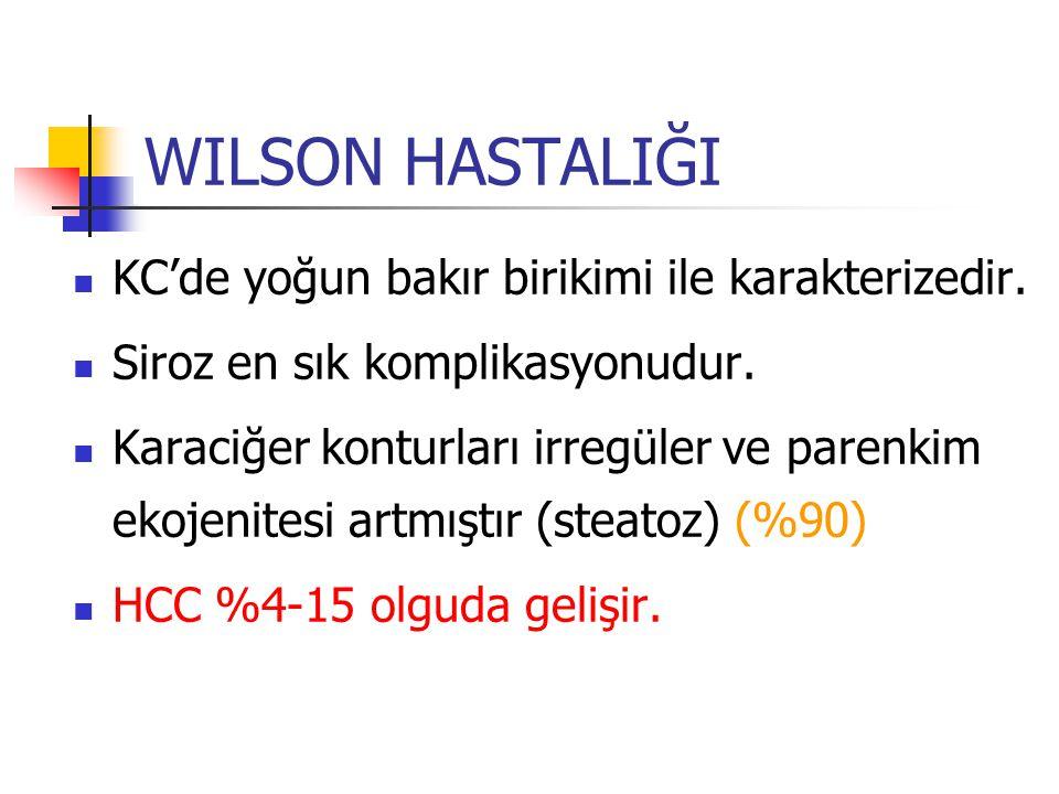 WILSON HASTALIĞI KC'de yoğun bakır birikimi ile karakterizedir.