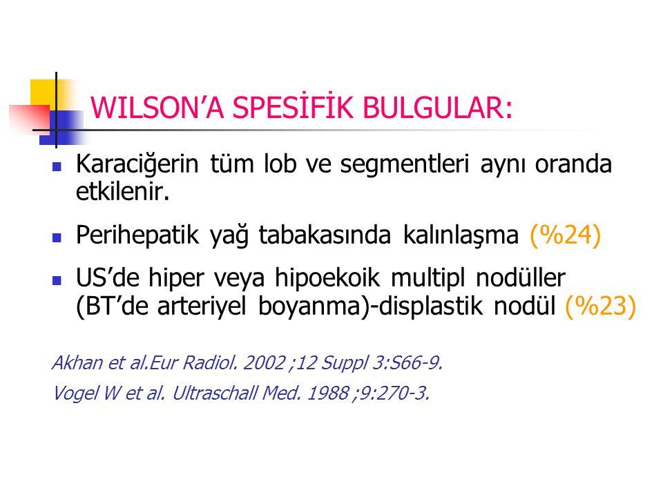 WILSON'A SPESİFİK BULGULAR: