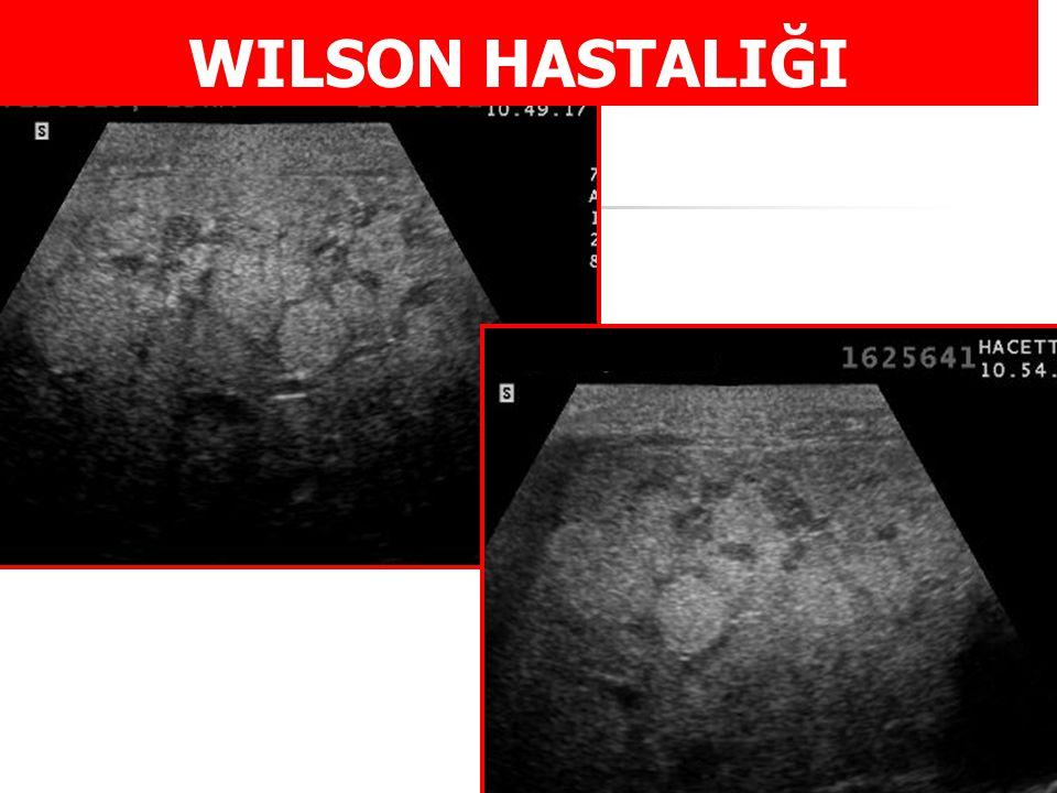 WILSON HASTALIĞI