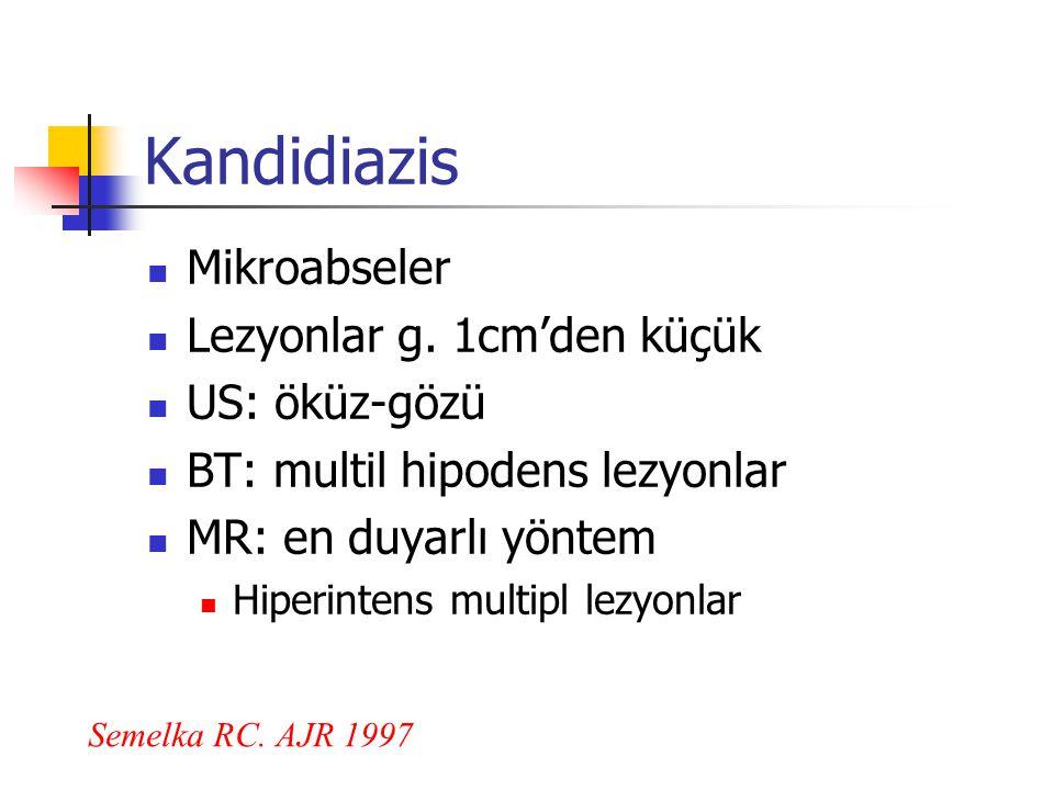 Kandidiazis Mikroabseler Lezyonlar g. 1cm'den küçük US: öküz-gözü