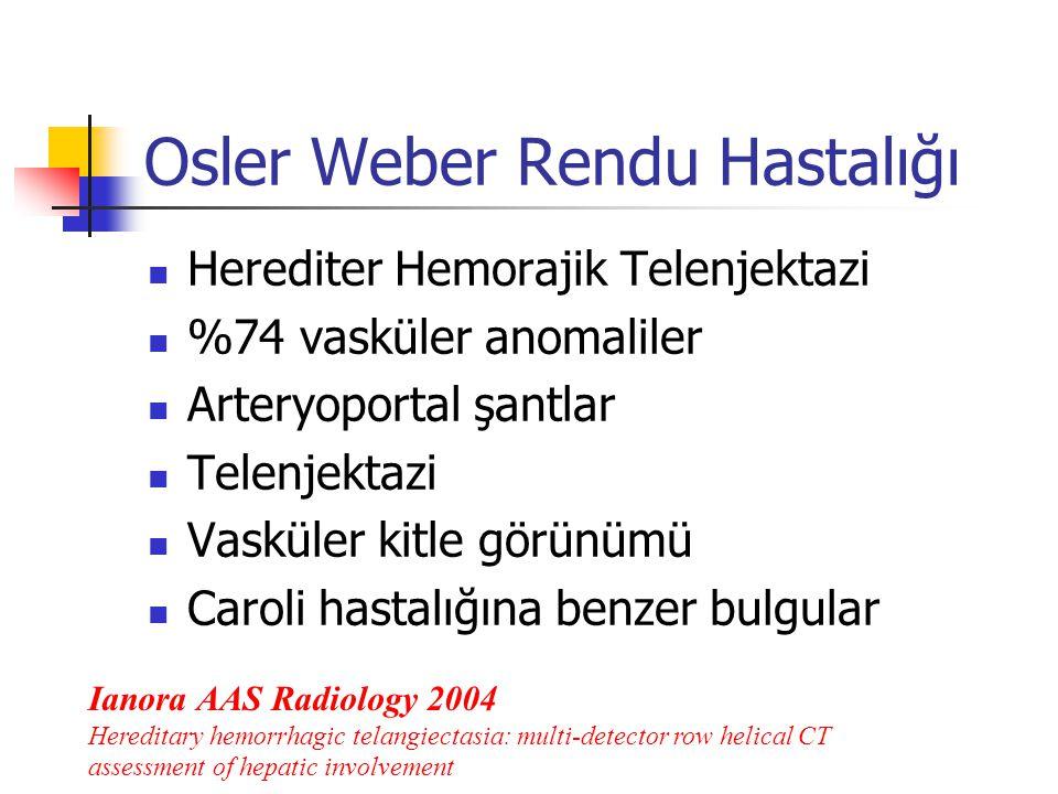 Osler Weber Rendu Hastalığı