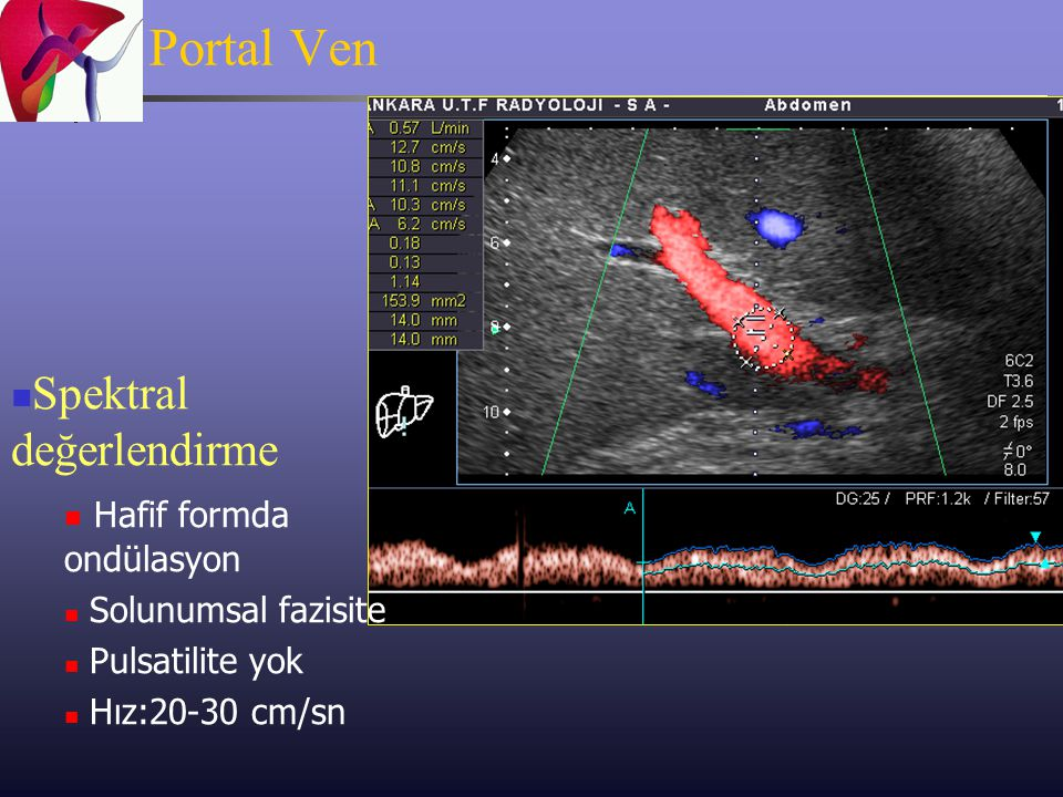 Portal Ven Spektral değerlendirme Hafif formda ondülasyon
