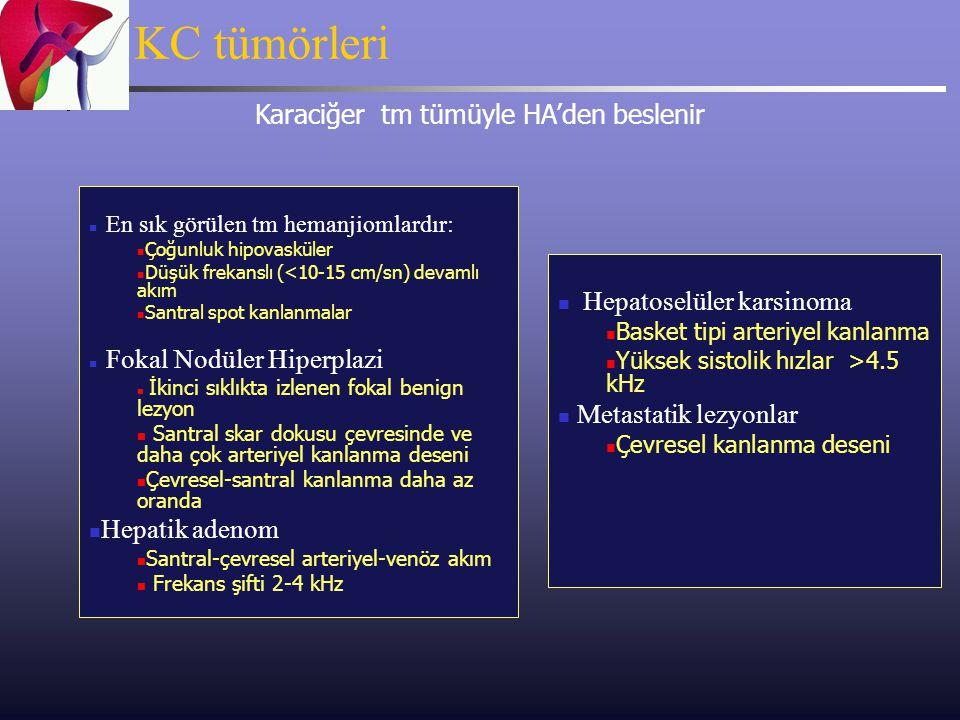 KC tümörleri Karaciğer tm tümüyle HA'den beslenir