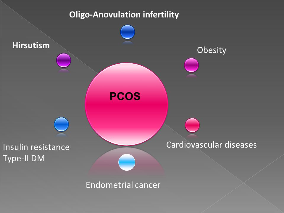 PCOS Oligo-Anovulation infertility Hirsutism Obesity