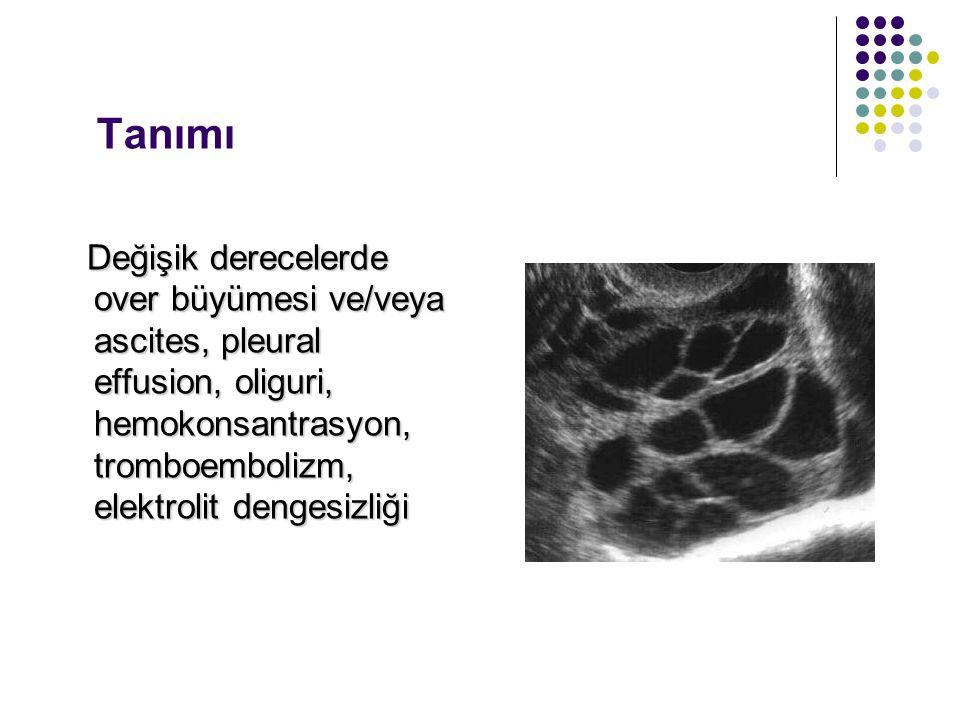 Tanımı Değişik derecelerde over büyümesi ve/veya ascites, pleural effusion, oliguri, hemokonsantrasyon, tromboembolizm, elektrolit dengesizliği.
