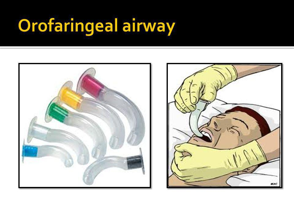 Orofaringeal airway