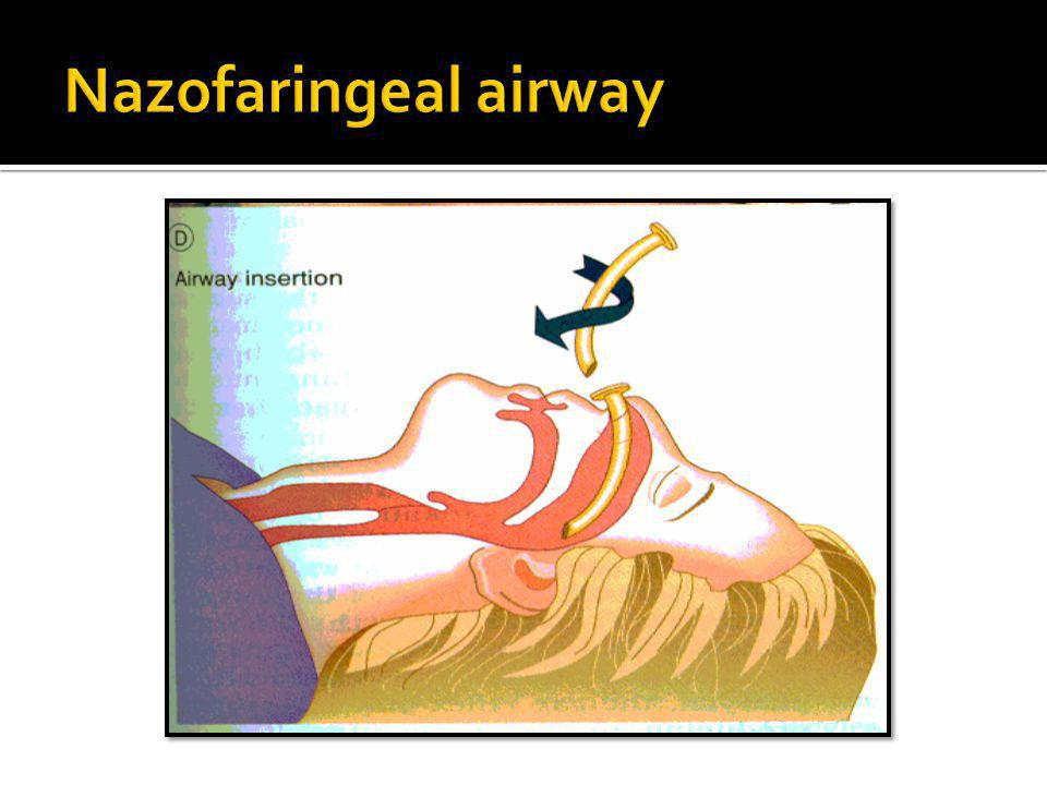 Nazofaringeal airway