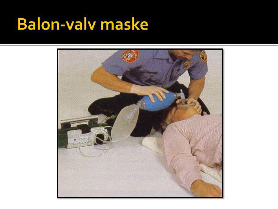 Balon-valv maske