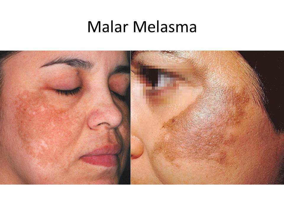 Malar Melasma