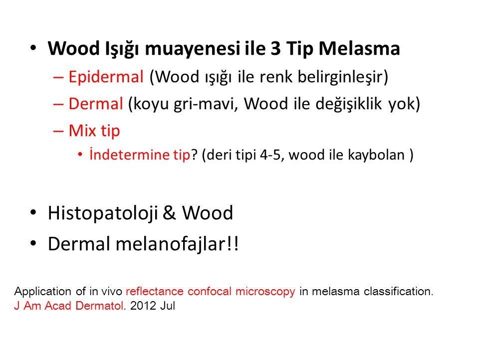 Wood Işığı muayenesi ile 3 Tip Melasma
