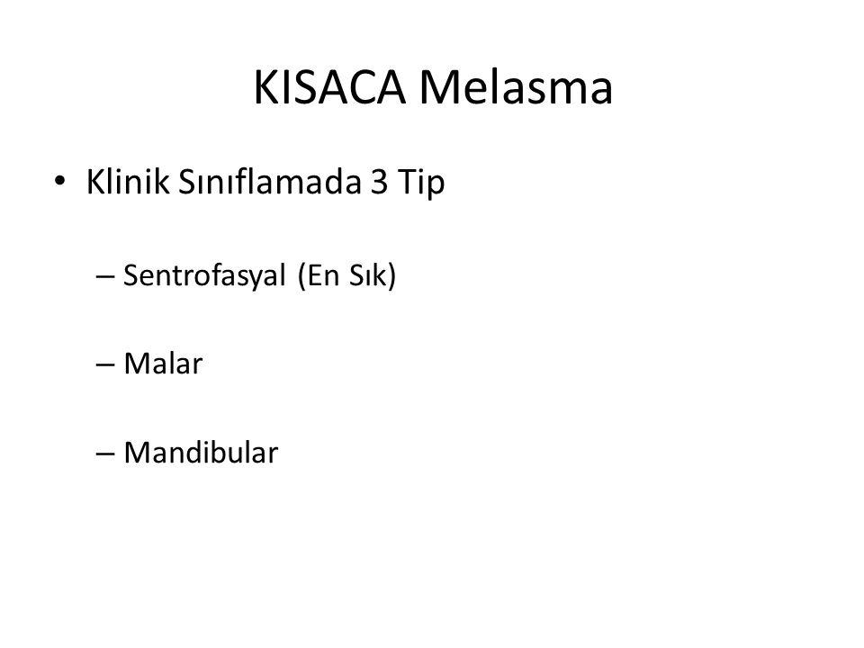 KISACA Melasma Klinik Sınıflamada 3 Tip Sentrofasyal (En Sık) Malar