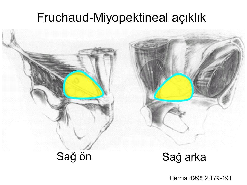 Fruchaud-Miyopektineal açıklık