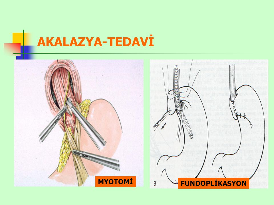 AKALAZYA-TEDAVİ MYOTOMİ FUNDOPLİKASYON