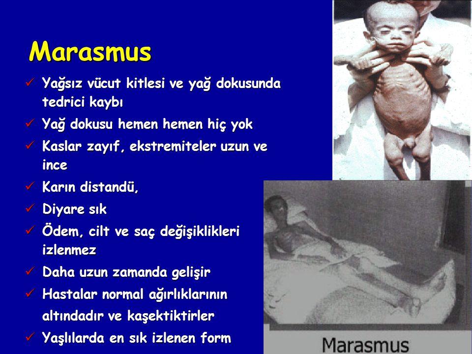 Marasmus Yağsız vücut kitlesi ve yağ dokusunda tedrici kaybı