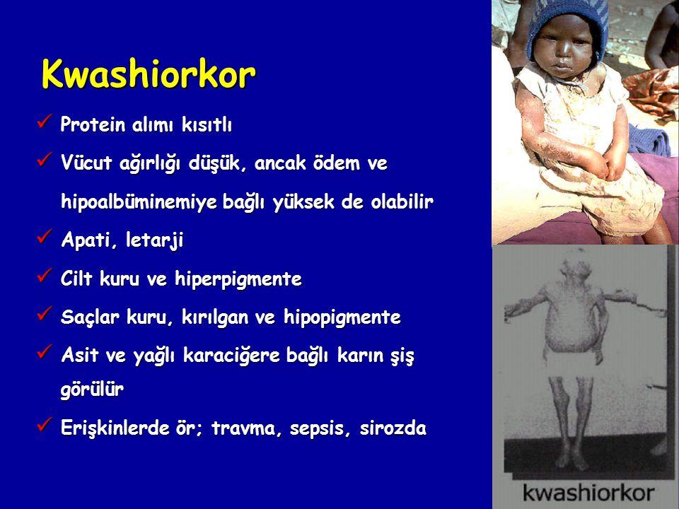 Kwashiorkor Protein alımı kısıtlı Vücut ağırlığı düşük, ancak ödem ve