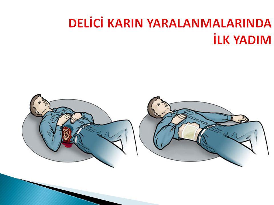 DELİCİ KARIN YARALANMALARINDA