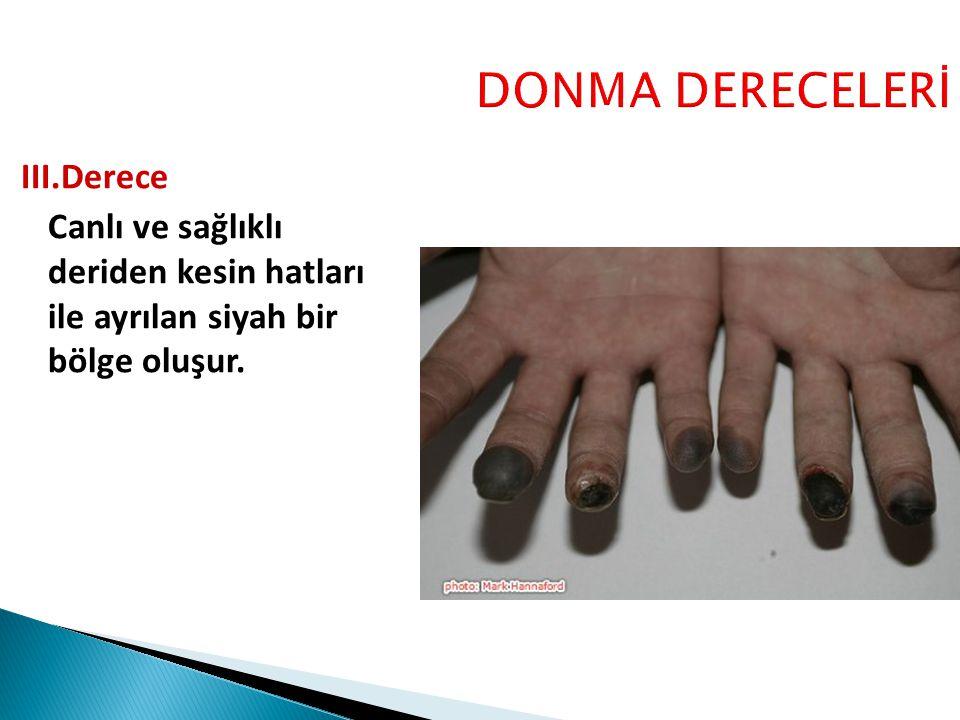 DONMA DERECELERİ III.Derece