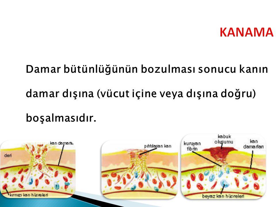 KANAMA Damar bütünlüğünün bozulması sonucu kanın damar dışına (vücut içine veya dışına doğru) boşalmasıdır.