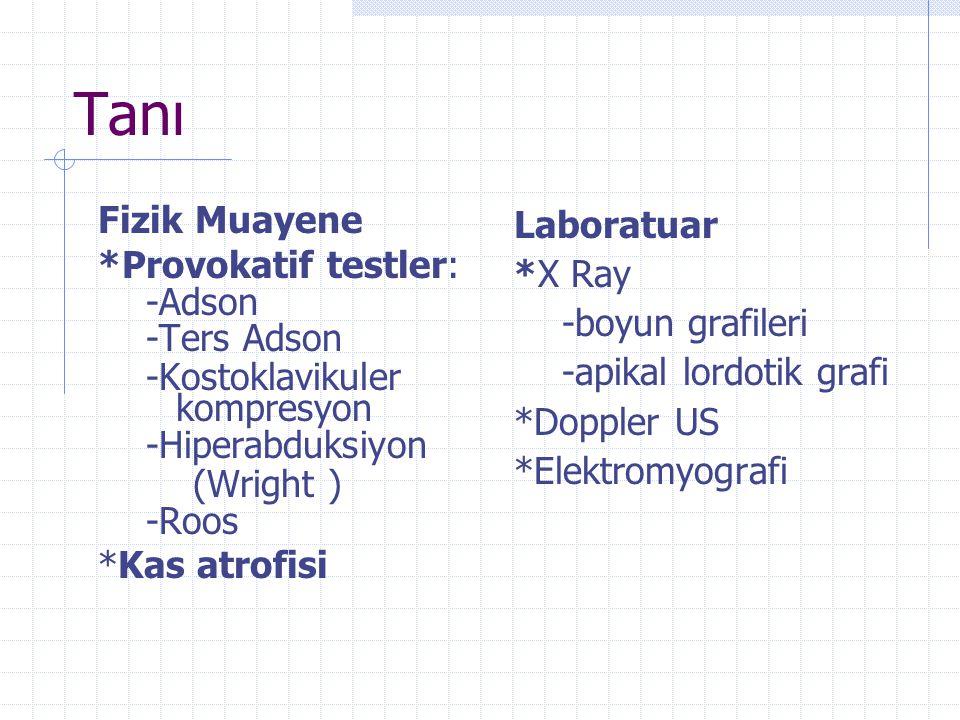 Tanı Fizik Muayene *Provokatif testler: -Adson -Ters Adson