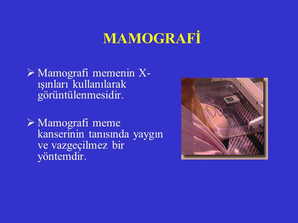 MAMOGRAFİ Mamografi memenin X-ışınları kullanılarak görüntülenmesidir.