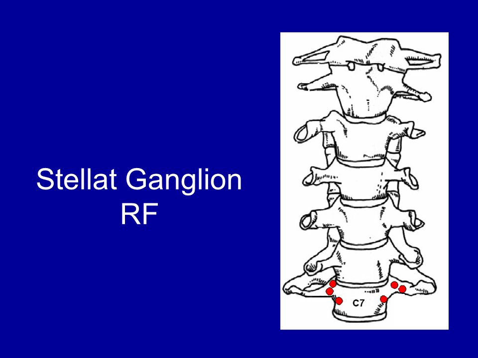 Stellat Ganglion RF