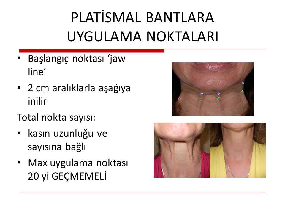 PLATİSMAL BANTLARA UYGULAMA NOKTALARI