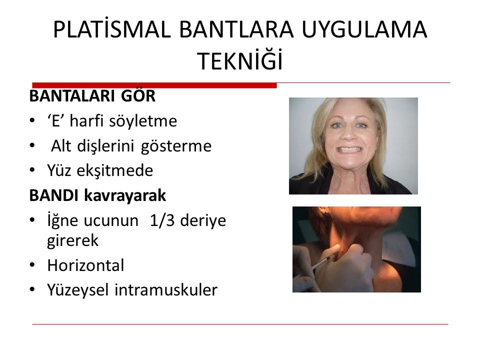 PLATİSMAL BANTLARA UYGULAMA TEKNİĞİ