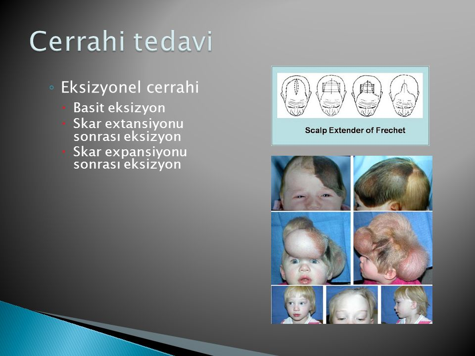 Cerrahi tedavi Eksizyonel cerrahi Basit eksizyon