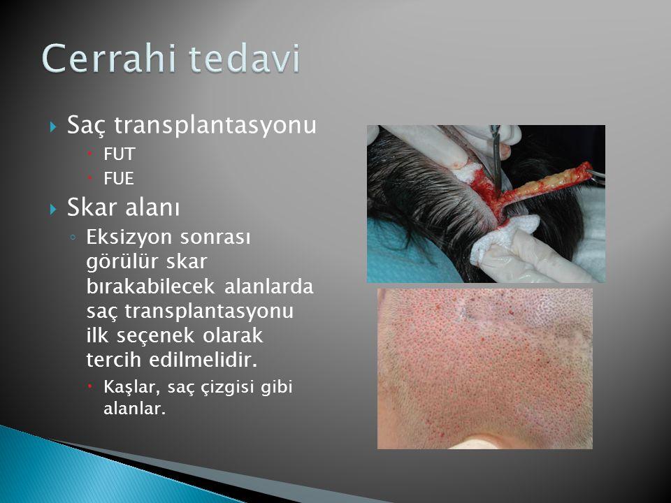 Cerrahi tedavi Saç transplantasyonu Skar alanı