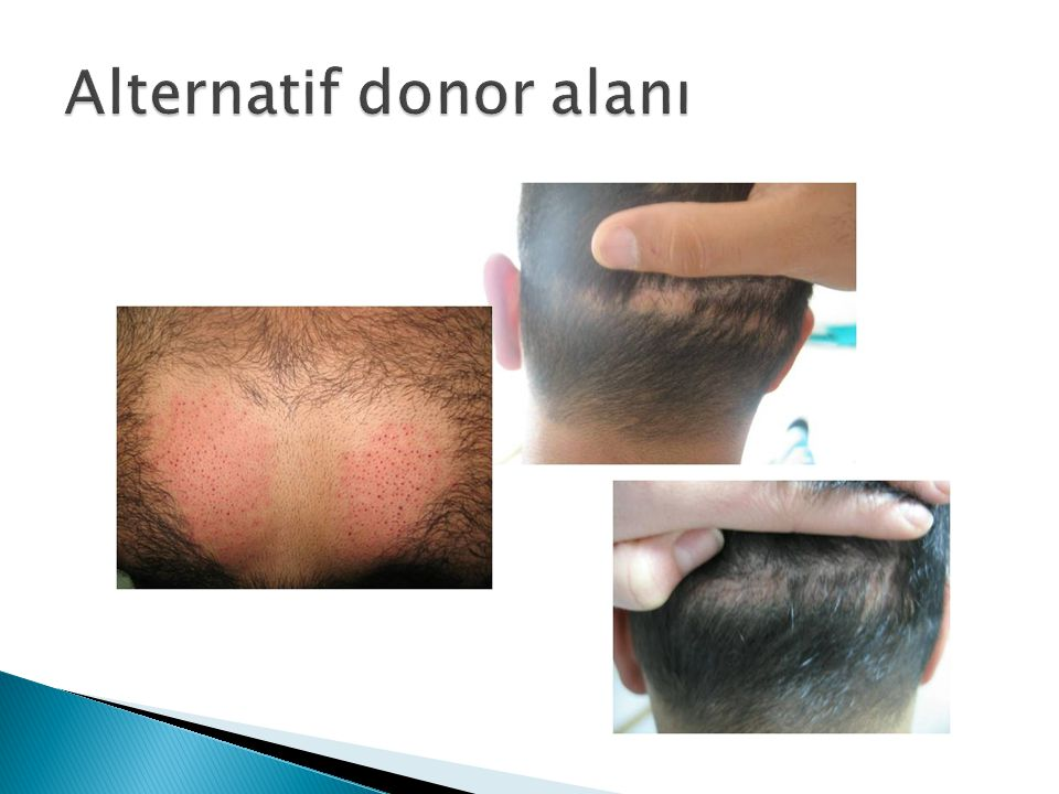 Alternatif donor alanı