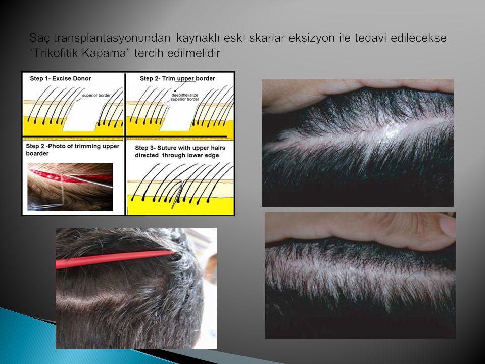 Saç transplantasyonundan kaynaklı eski skarlar eksizyon ile tedavi edilecekse Trikofitik Kapama tercih edilmelidir