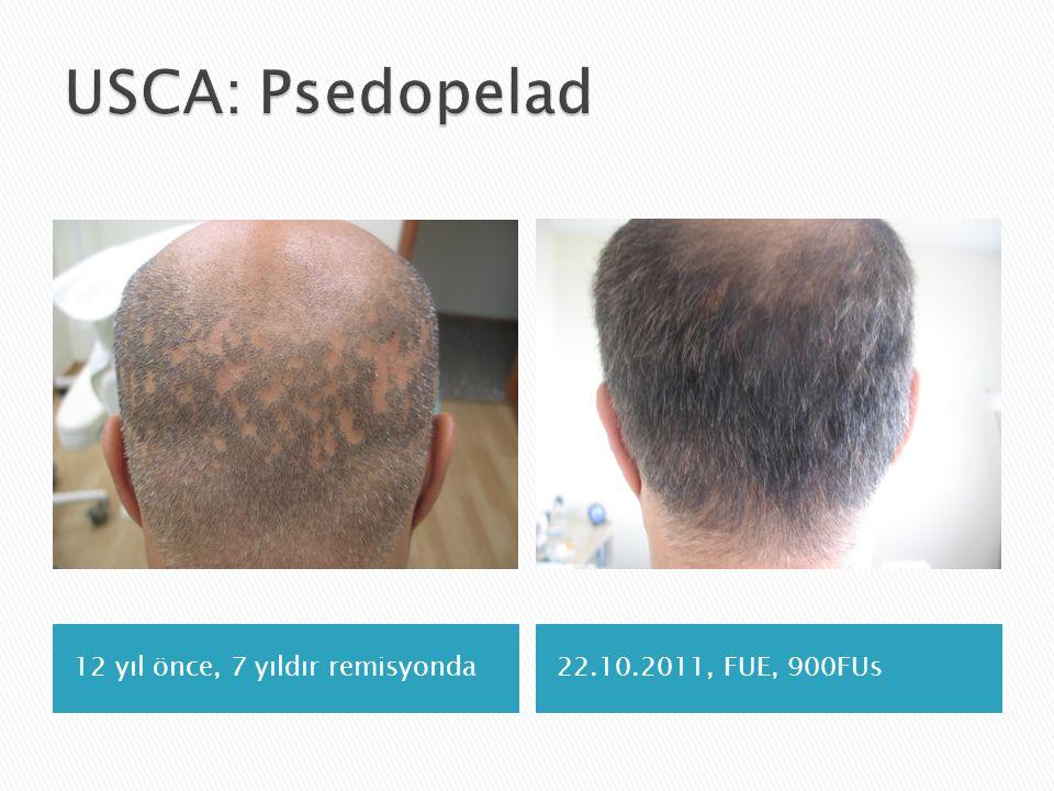 USCA: Psedopelad 12 yıl önce, 7 yıldır remisyonda