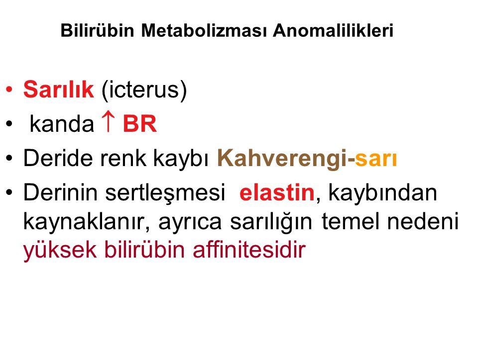 Bilirübin Metabolizması Anomalilikleri