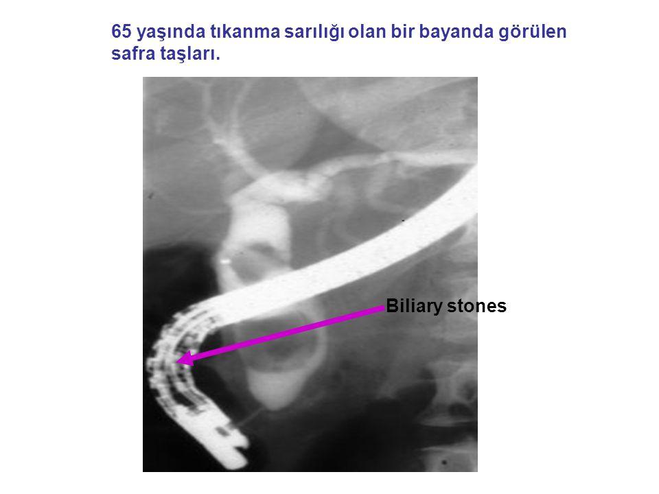 65 yaşında tıkanma sarılığı olan bir bayanda görülen safra taşları.