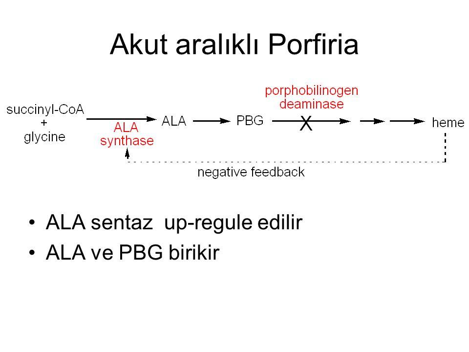 Akut aralıklı Porfiria