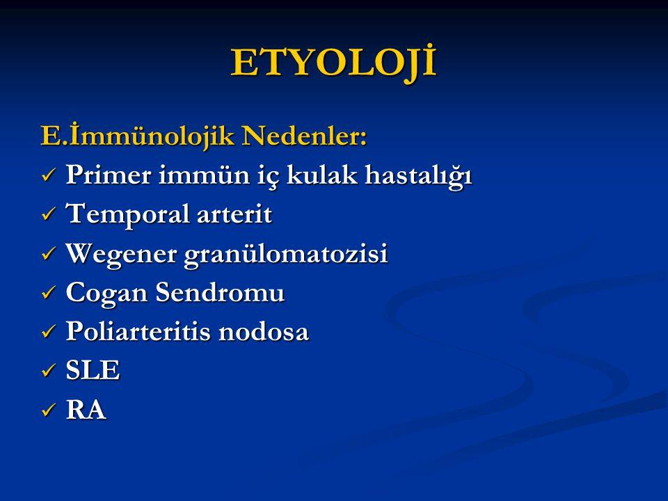 ETYOLOJİ E.İmmünolojik Nedenler: Primer immün iç kulak hastalığı
