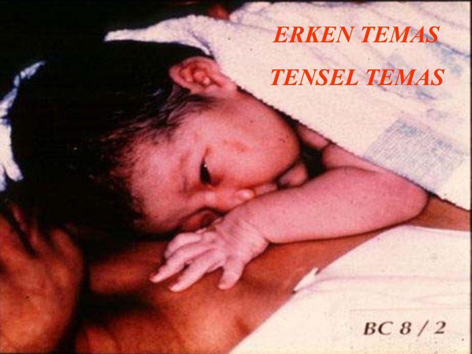 ERKEN TEMAS TENSEL TEMAS