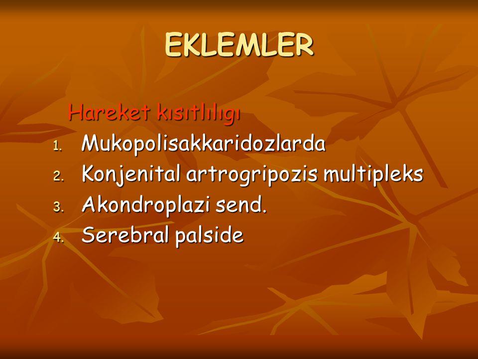 EKLEMLER Hareket kısıtlılıgı Mukopolisakkaridozlarda