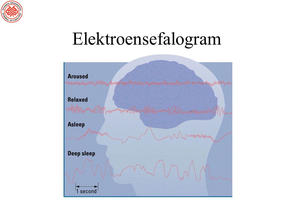 Elektroensefalogram Electroencephalogram (EEG) A recording of neural activity detected by electrodes.