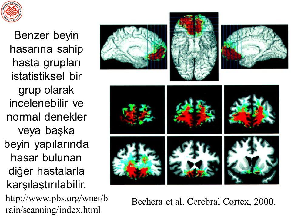 Benzer beyin hasarına sahip hasta grupları istatistiksel bir grup olarak incelenebilir ve normal denekler veya başka beyin yapılarında hasar bulunan diğer hastalarla karşılaştırılabilir.