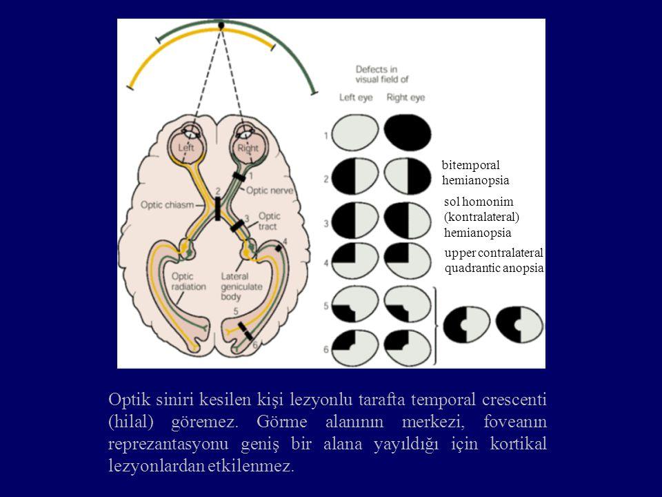 bitemporal hemianopsia