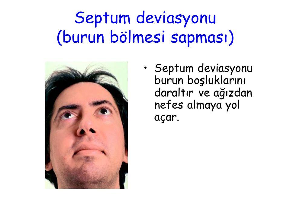 Septum deviasyonu (burun bölmesi sapması)