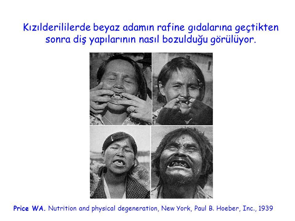Kızılderililerde beyaz adamın rafine gıdalarına geçtikten sonra diş yapılarının nasıl bozulduğu görülüyor.