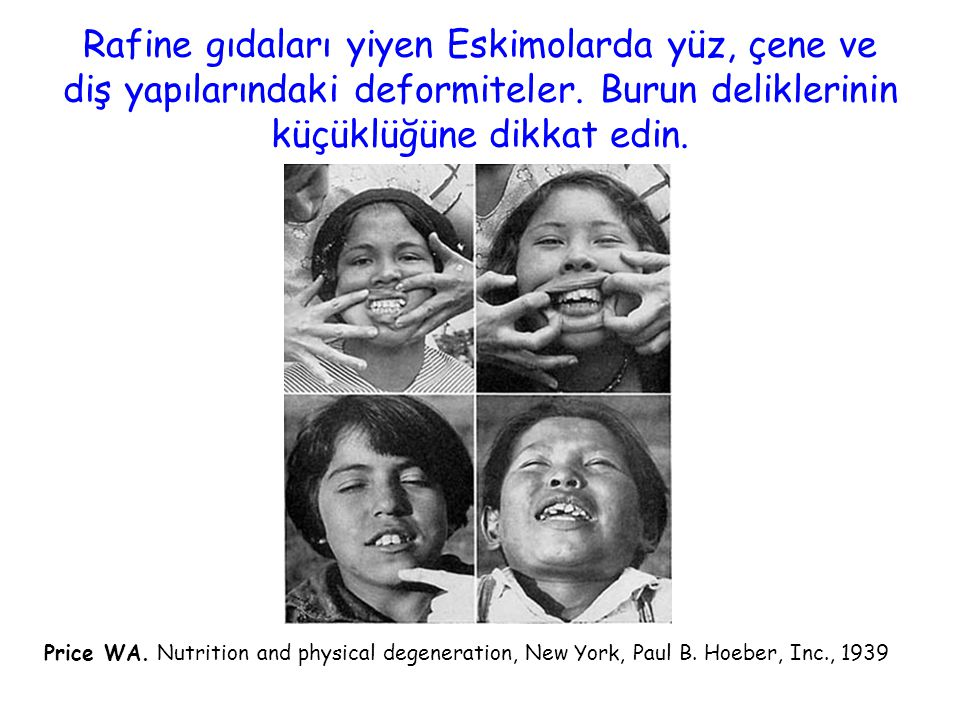 Rafine gıdaları yiyen Eskimolarda yüz, çene ve diş yapılarındaki deformiteler. Burun deliklerinin küçüklüğüne dikkat edin.