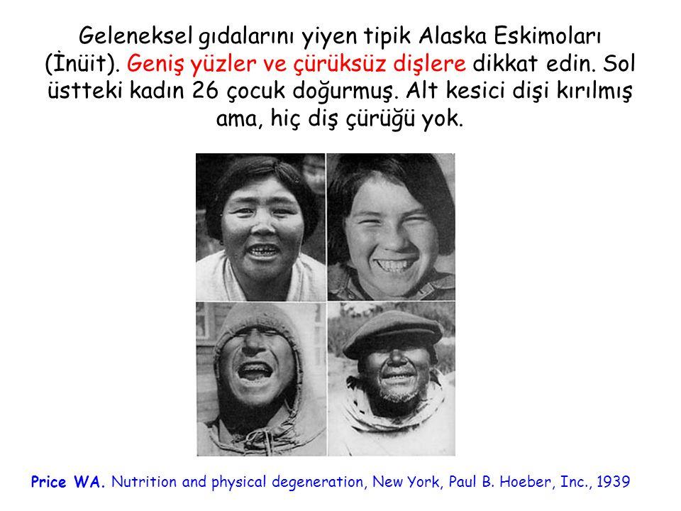 Geleneksel gıdalarını yiyen tipik Alaska Eskimoları (İnüit)
