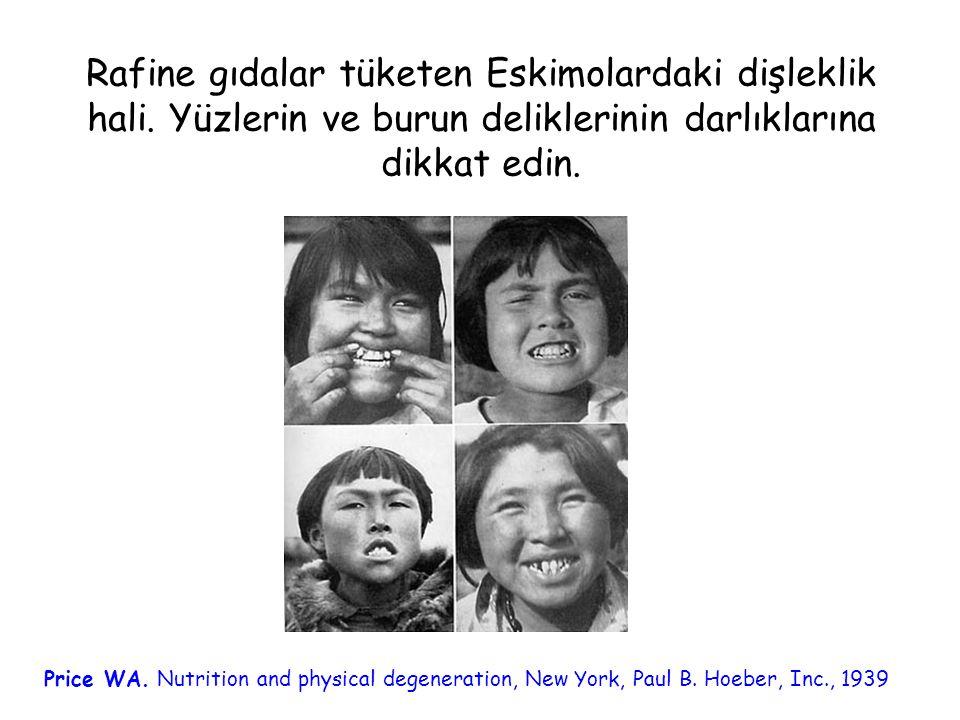Rafine gıdalar tüketen Eskimolardaki dişleklik hali