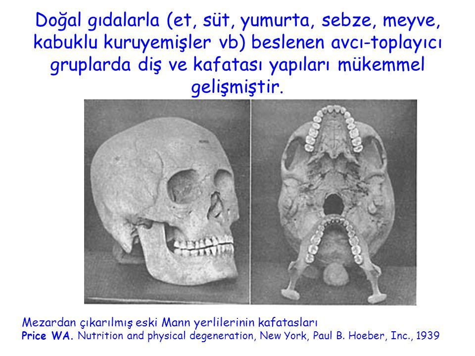 Doğal gıdalarla (et, süt, yumurta, sebze, meyve, kabuklu kuruyemişler vb) beslenen avcı-toplayıcı gruplarda diş ve kafatası yapıları mükemmel gelişmiştir.