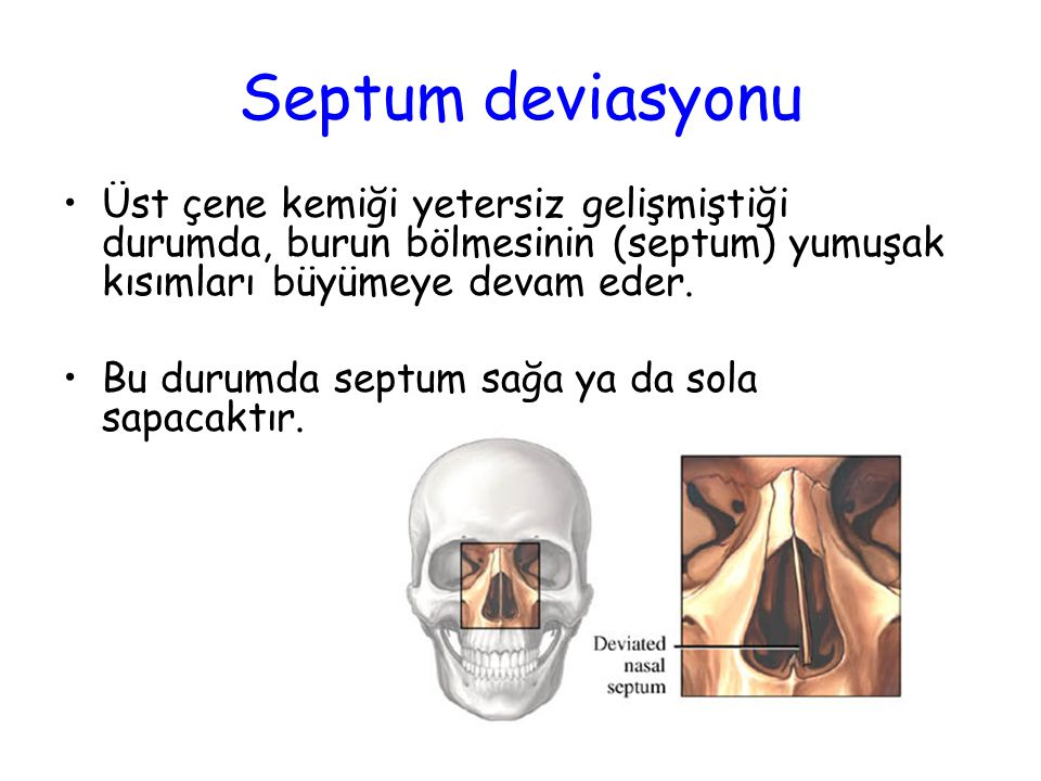 Septum deviasyonu Üst çene kemiği yetersiz gelişmiştiği durumda, burun bölmesinin (septum) yumuşak kısımları büyümeye devam eder.
