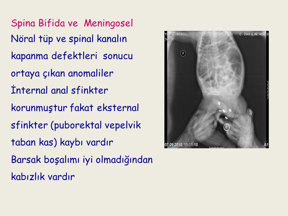 Spina Bifida ve Meningosel