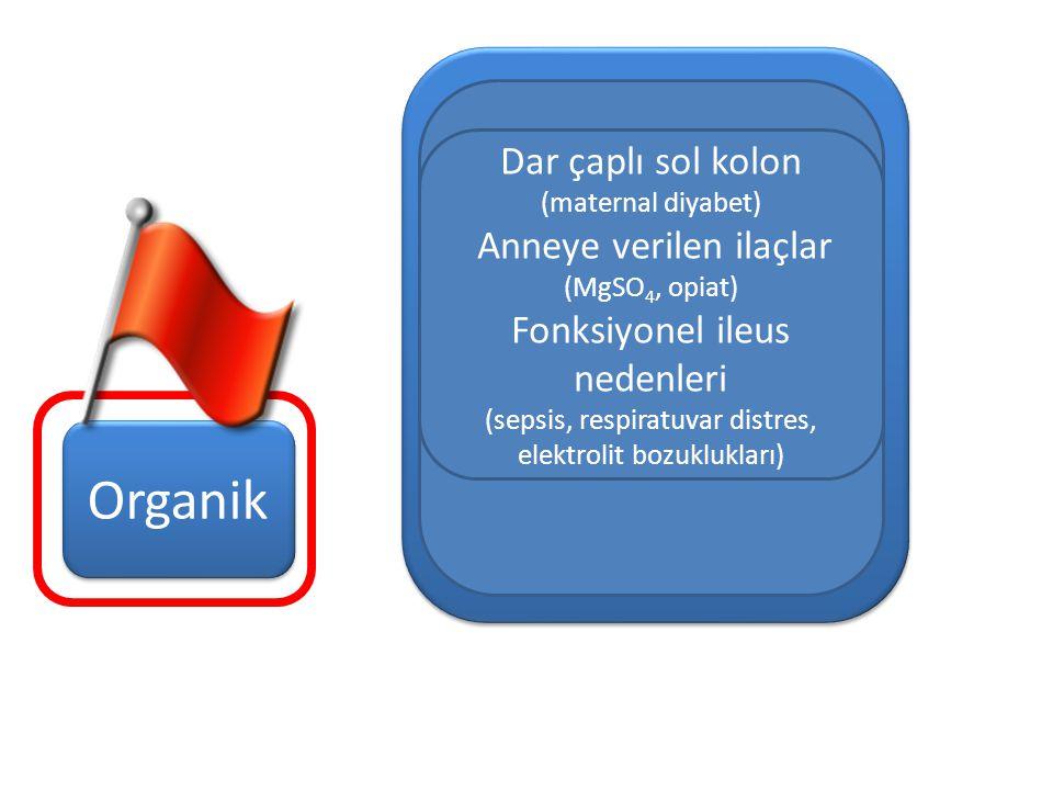 Yenidoğan Süt Çocuğu Organik Dar çaplı sol kolon (maternal diyabet)